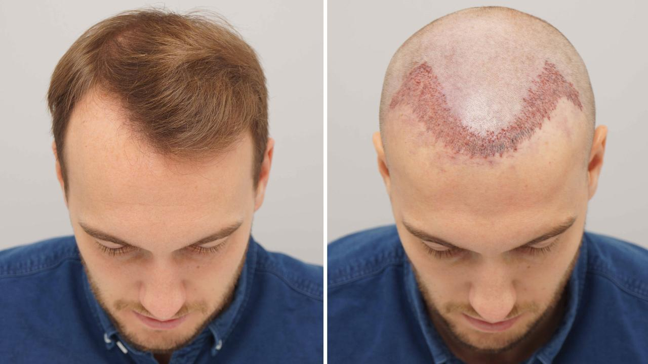 Factors That Affect the Hair Transplant Cost in Jaipur